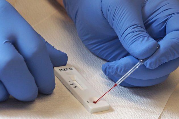 Test na antitela koronavirusa