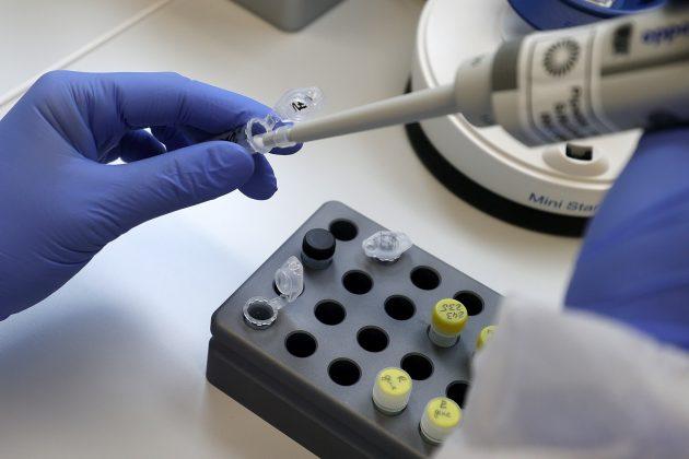 Testiranje uzoraka na koronavirus u laboratoriji