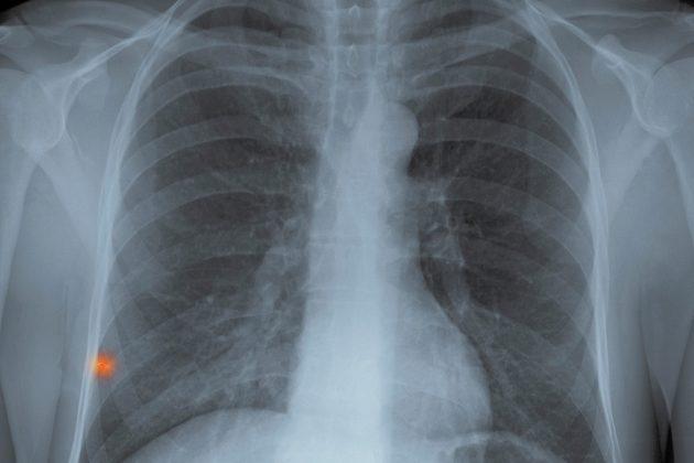Snimak pluća