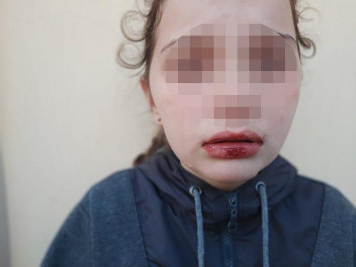 Čačak - Pretučena devojčica