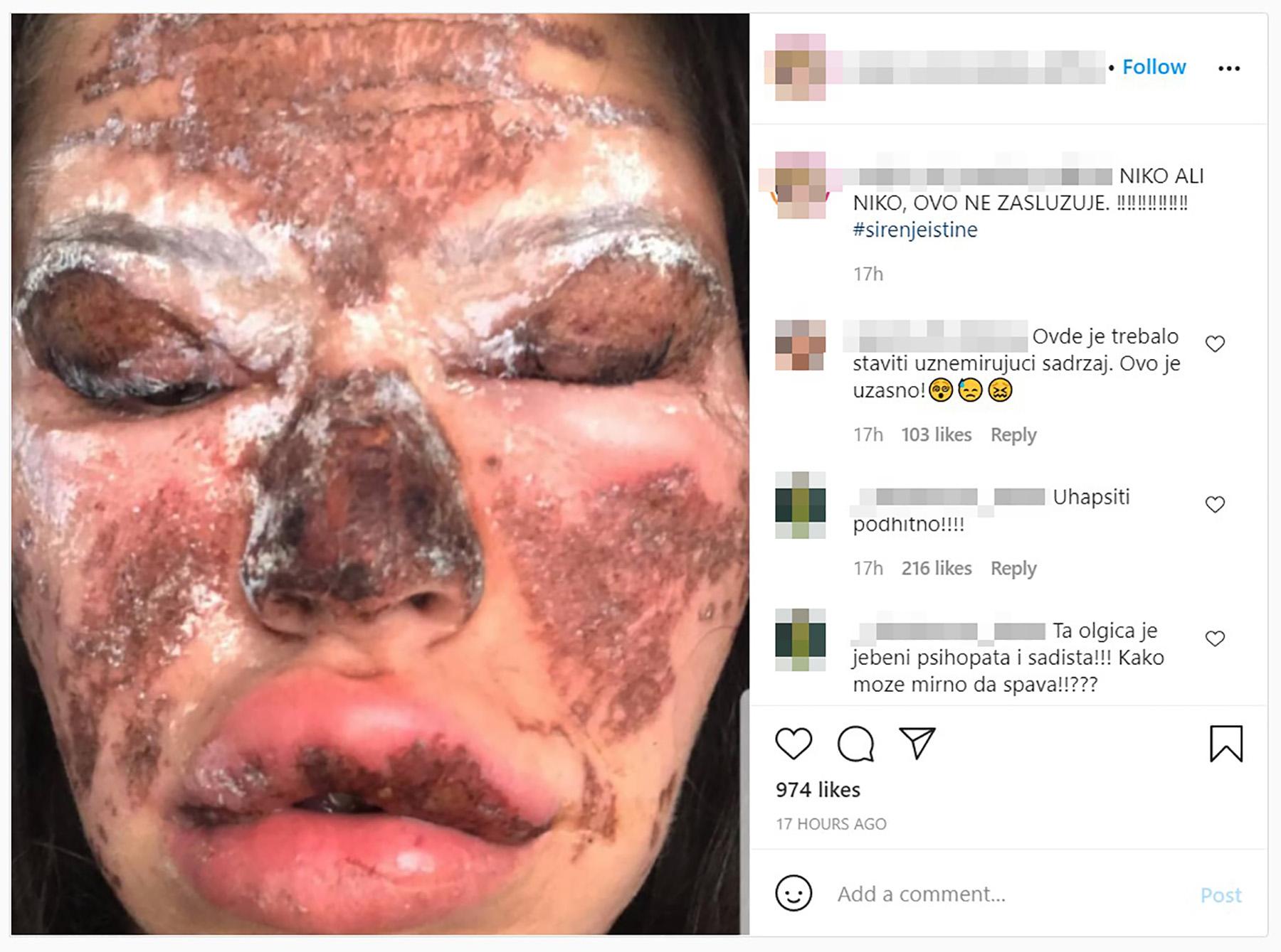 brazilska ožiljci
