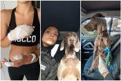 Nela Bunčić, pas, napad, povrede