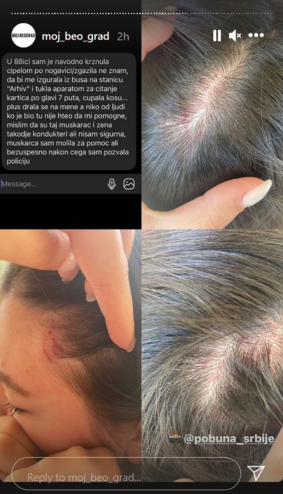 Povrede Foto: Printscreen/Instagram story/moj_beo_grad/@pobuna_srbije