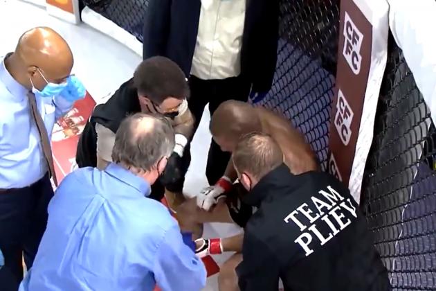 MMA borac ostao bez prsta