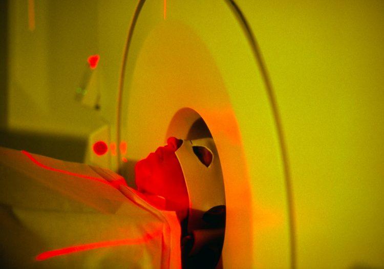 skener mozga